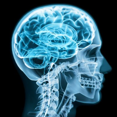 Gamma-MRI